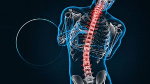 CFI | Patologia da Coluna